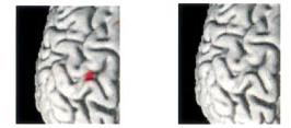 Comparativa de evolución de los mapas cerebrales, la primera imagen corresponde con el aumento de la señal del cortéx motor tras un movimiento activo. La segunda corresponde con un aumento de la actividad