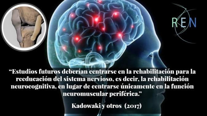 cerebro y ligamento